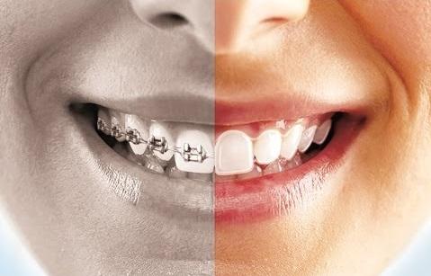 Invisible braces 2